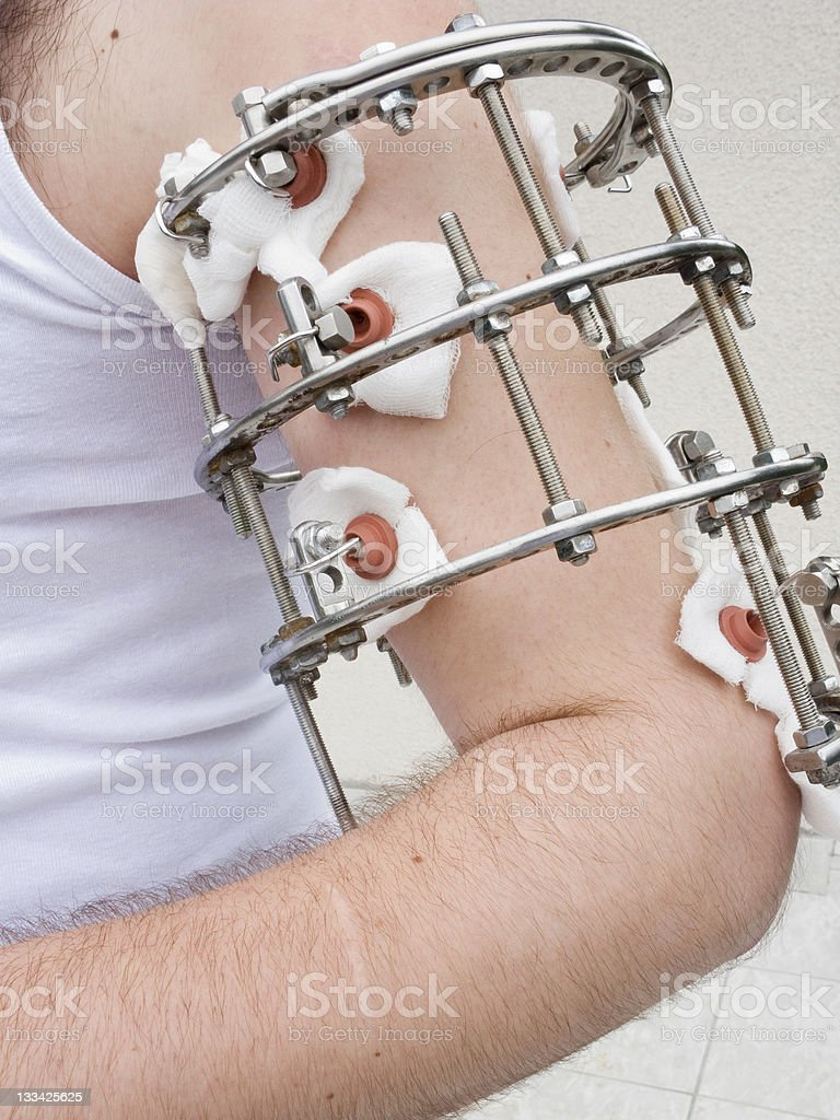 External Ring Fixation Stock Photo Download Image Now Istock