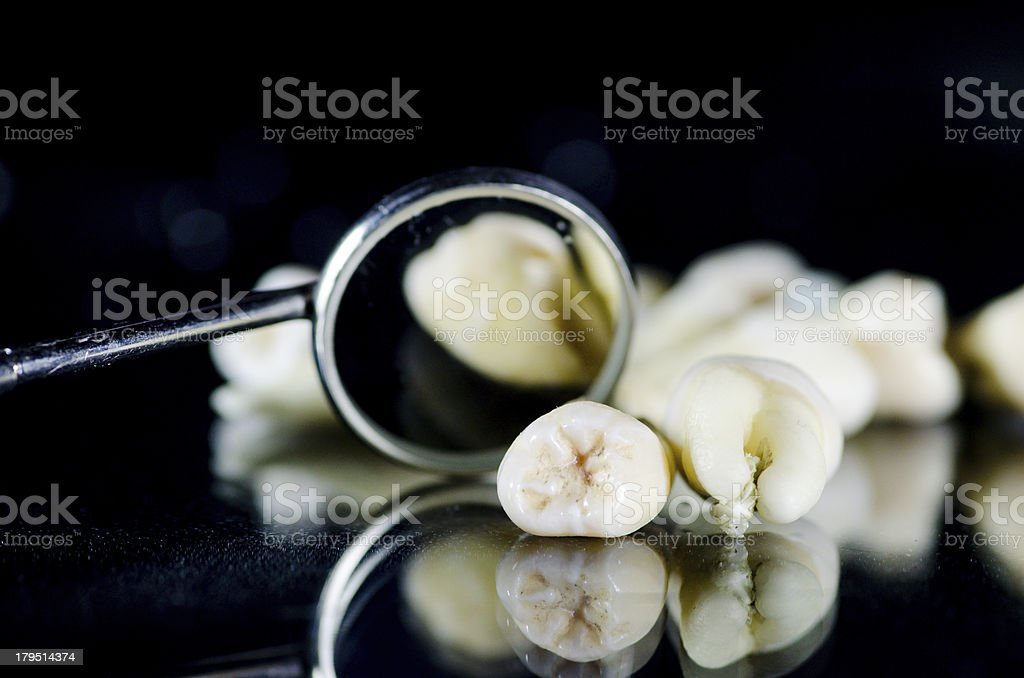 Extracted teeth and mouth mirror royalty-free stock photo