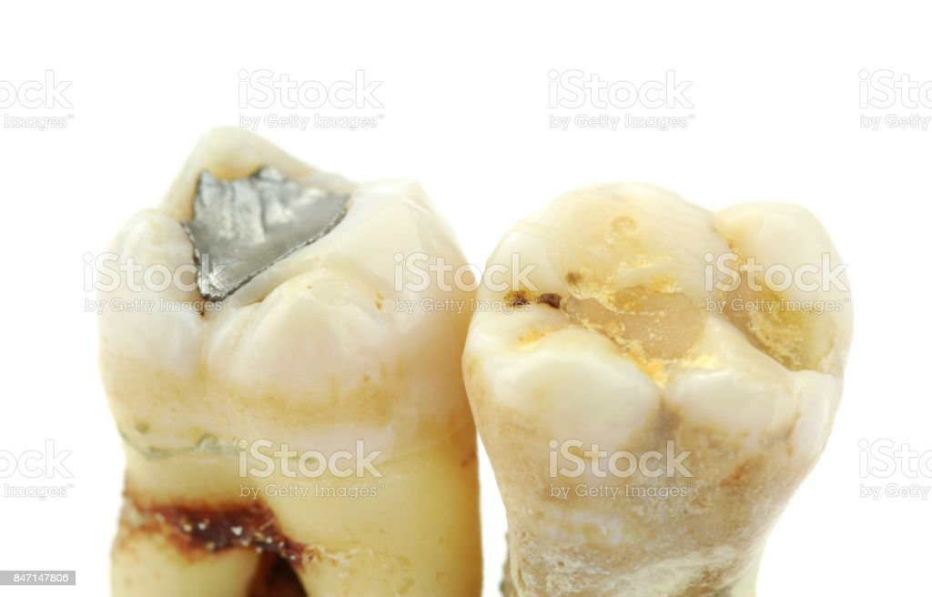 Extracted teeth with details of caries, fillings and tartar on white background. stock photo