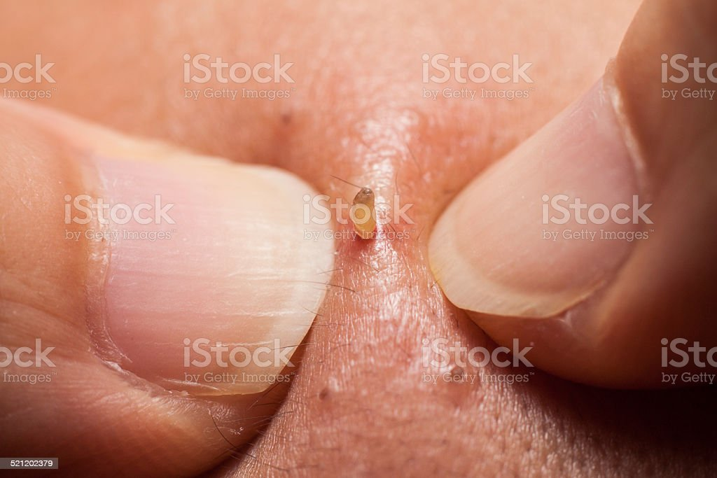 Extracting pimple blackheads from the nose area stock photo