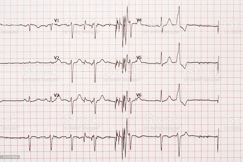 Extrasystole On 12 Lead Electrocardiogram Paper stock photo