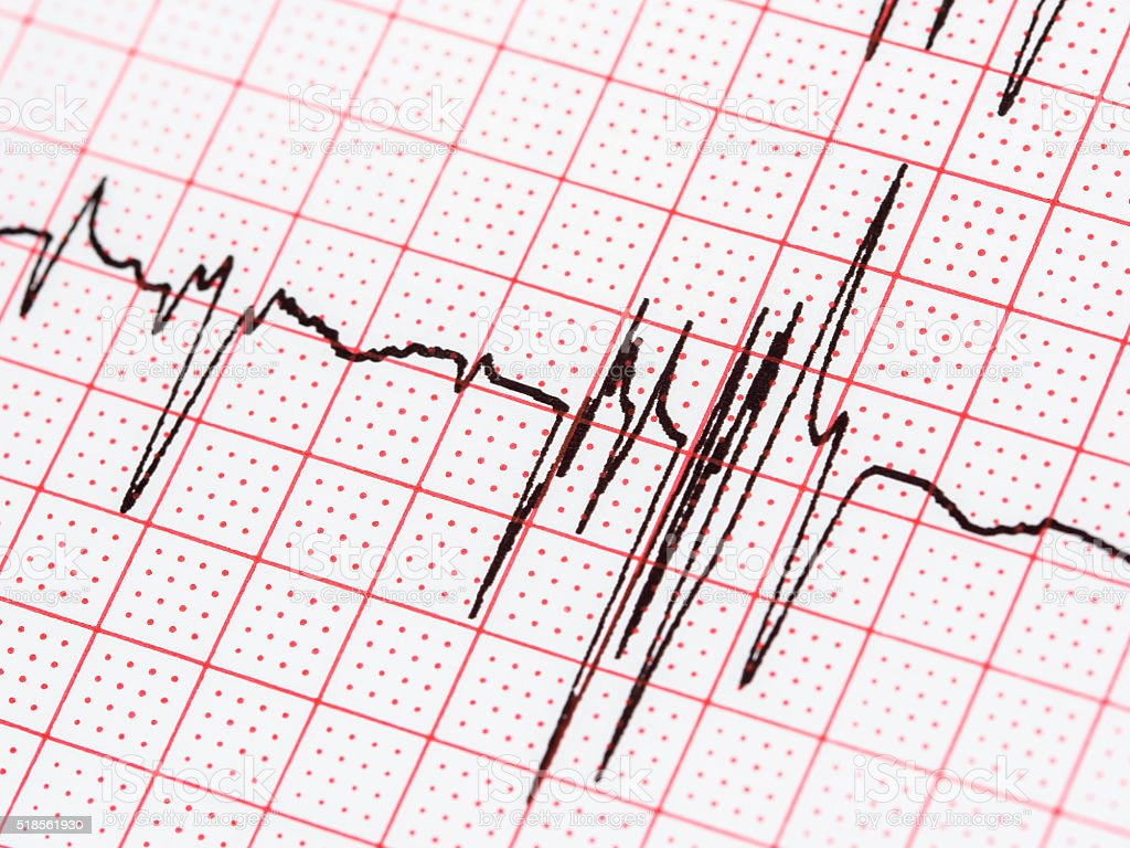 Extrasystole On Electrocardiogram Paper stock photo