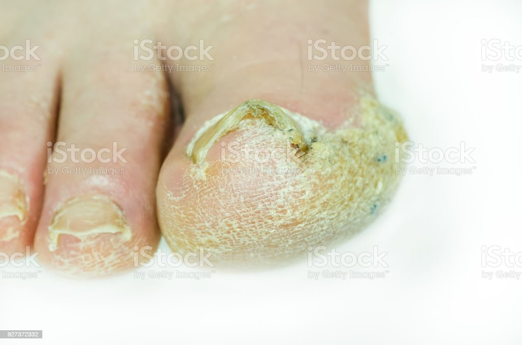 Extreme Bad Foot Skin Bacterial Fungal Infection With Damaged Nail ...