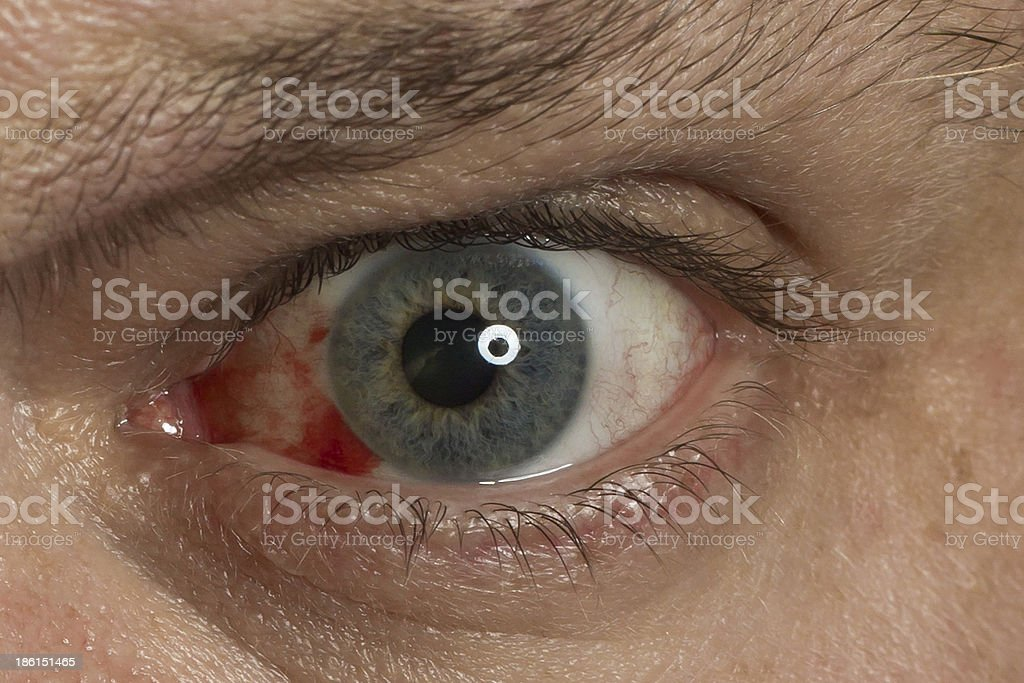 Extreme close up on red eye stock photo