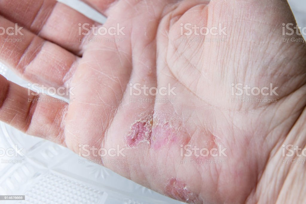 Extreme Sore Dry Cracked And Peeling Skin In The Hand Stock Photo ...