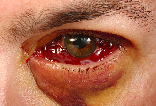 eye after vitrectomy surgery for detached retina - detachment stock pictures, royalty-free photos & images