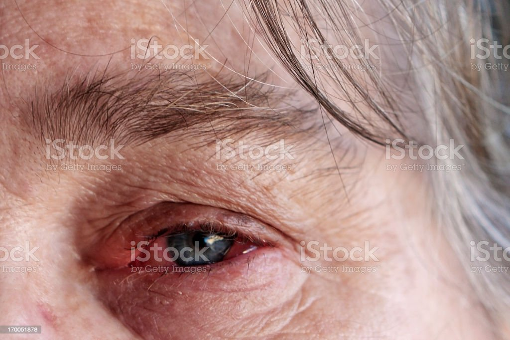 Eye allergy stock photo