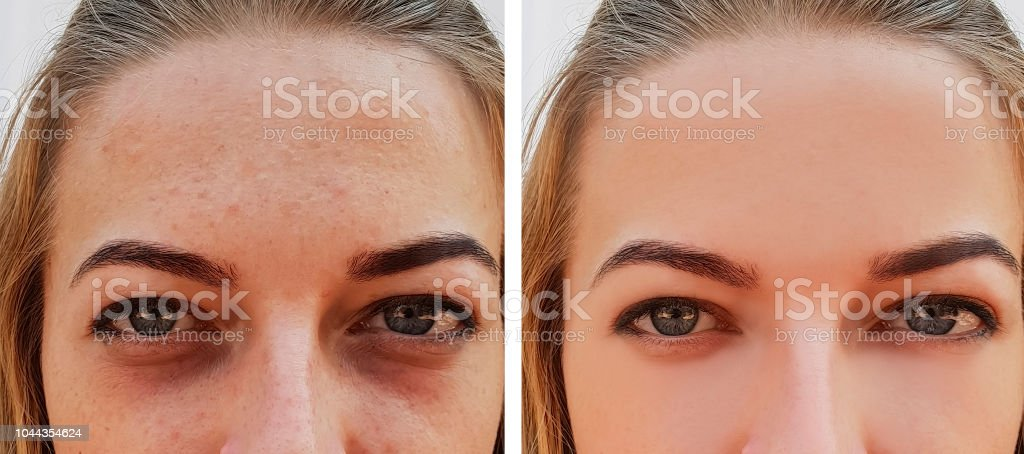 eye girl bag under the eyes before and after eye girl bag under the eyes before and after Adult Stock Photo
