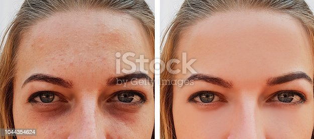 eye girl bag under the eyes before and after