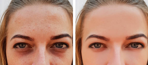 eye girl bag under the eyes before and after eye girl bag under the eyes before and after antiaging stock pictures, royalty-free photos & images