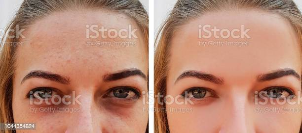 Eye Girl Bag Under The Eyes Before And After Stock Photo - Download Image Now