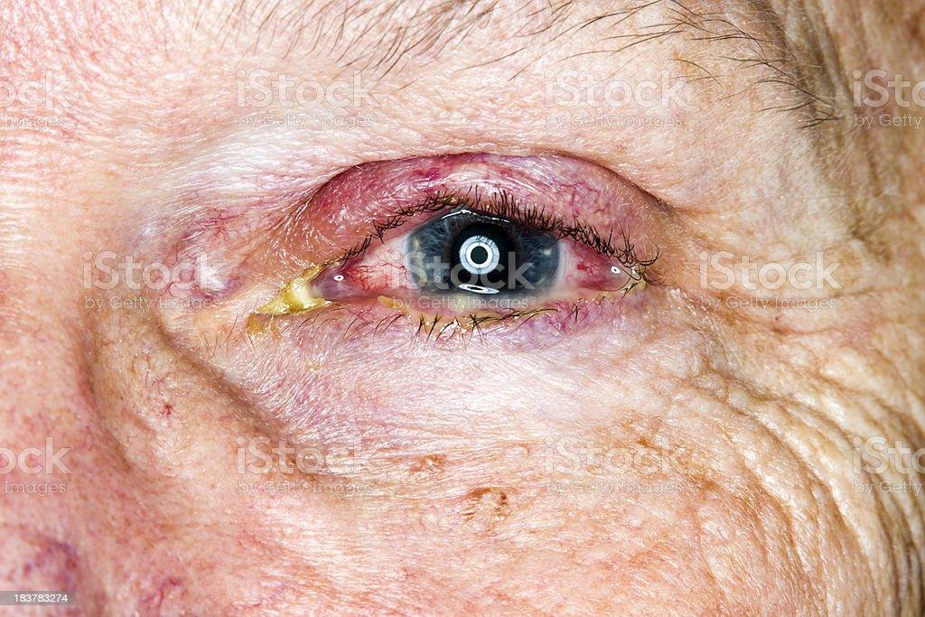 Eye Infection stock photo