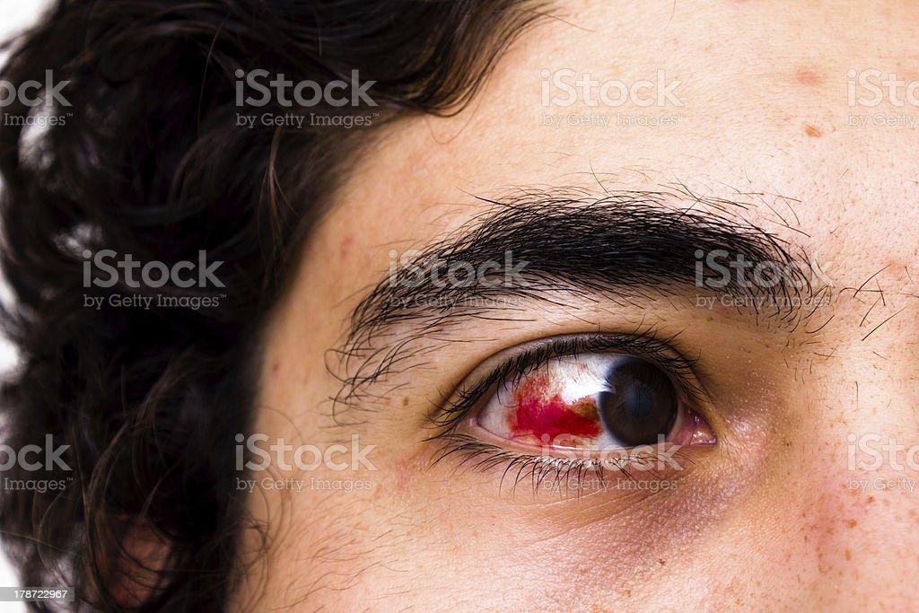 Eye injury stock photo