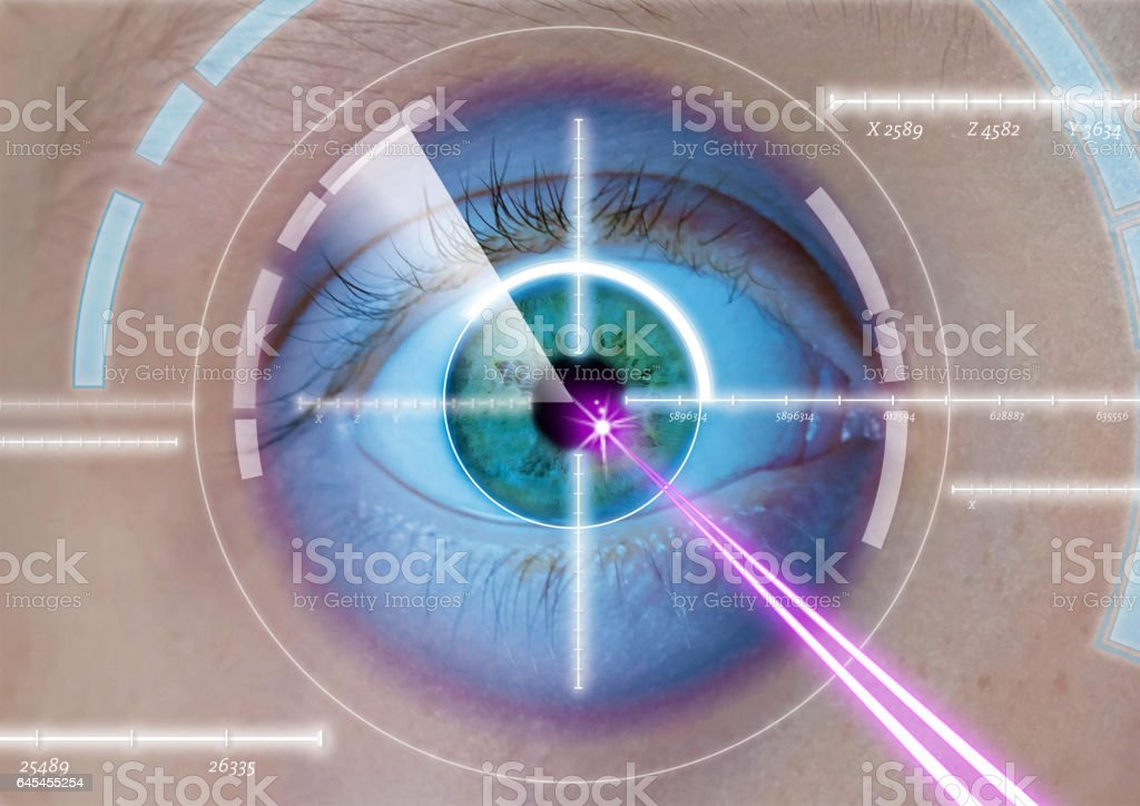 eye laser operation stock photo