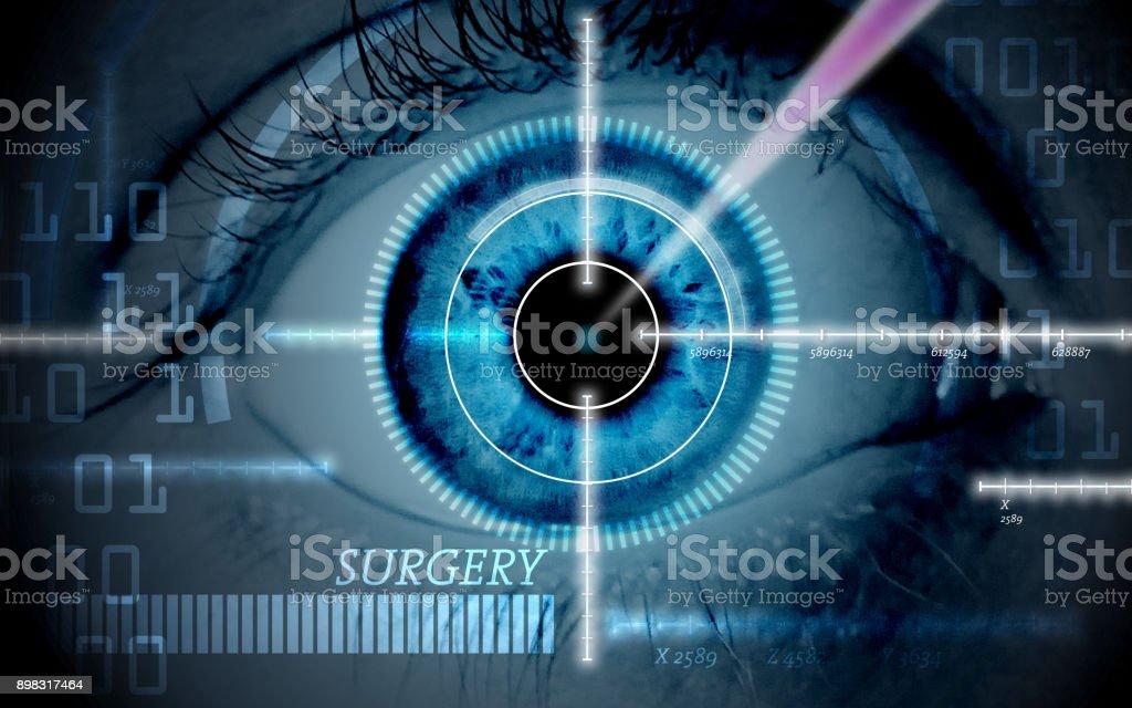 Laser-Augenchirurgie – Foto