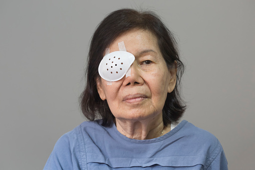 Eye Shield Covering After Cataract Surgery Stock Photo ...