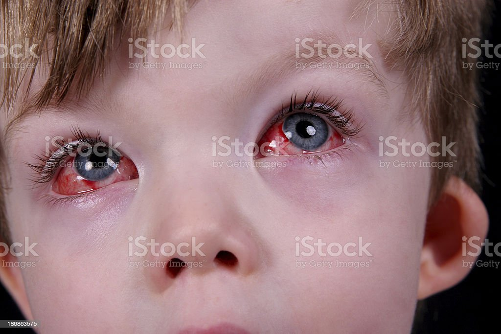 Eye surgery recovery 3. stock photo