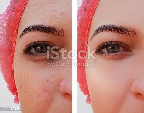 istock Eye swelling, wrinkles before and after cosmetic procedure, acne, pigmentation 1044423364
