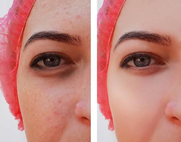 ögonsvullnad, rynkor före och efter kosmetisk förfarande, acne, pigmentering - filler swollen bildbanksfoton och bilder