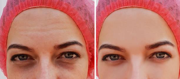 ögonsvullnad, rynkor före och efter kosmetiska förfarande - filler swollen bildbanksfoton och bilder