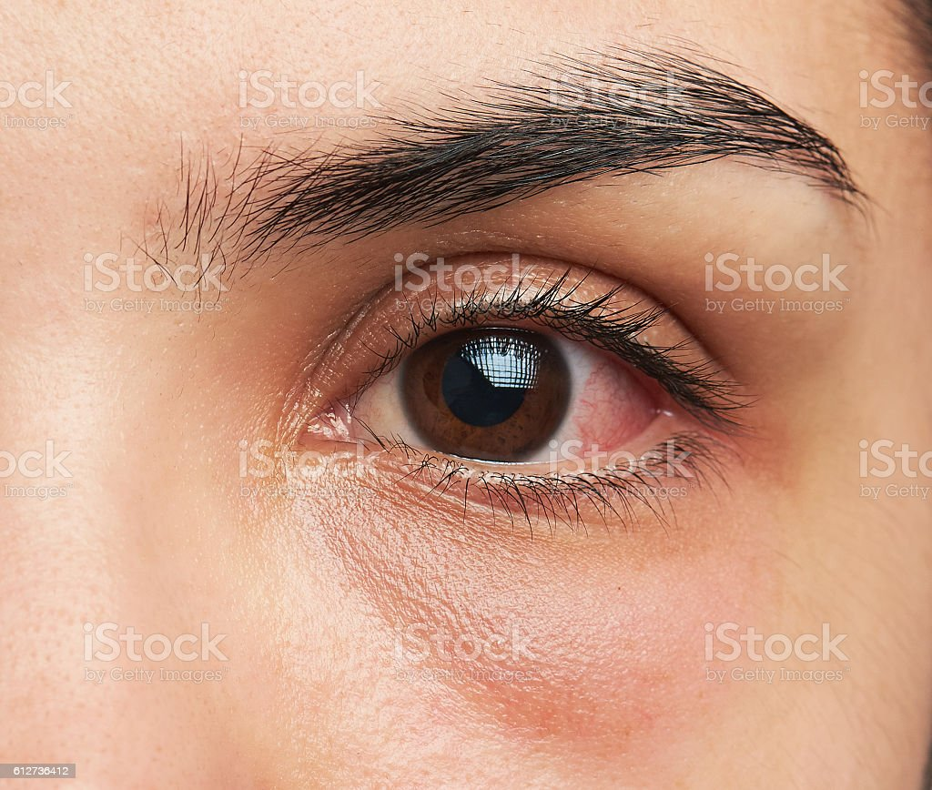 eye with infection stock photo