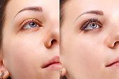 まつげの拡張機能。女性の目の前に、と後の比較