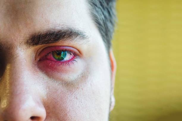 eyelid abscess - eyelid stock pictures, royalty-free photos & images