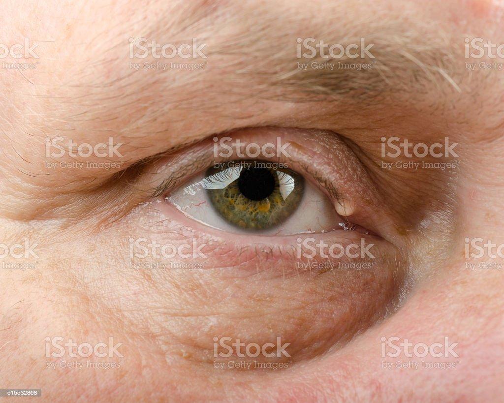Eyelid cyst on right upper eyelid stock photo
