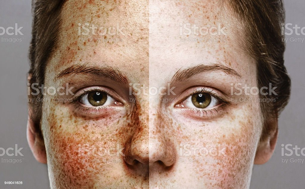 Eyes Woman freckle happy young beautiful studio portrait with healthy skin half stock photo