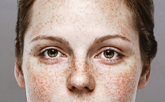 Eyes woman Young beautiful freckles woman face portrait with healthy skin. Studio shot. Isolated on gray.