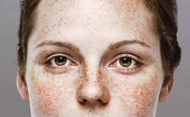 眼睛婦女年輕美麗的雀斑婦女面部畫像與健康皮膚 - 特寫 個照片及圖片檔