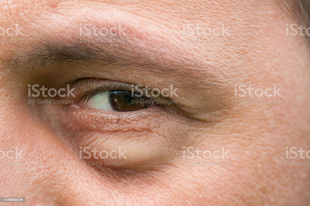 Eyesore, inflammation or bag swelling under eye stock photo