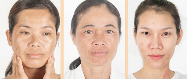 Face and differences. Age and skin. Dark spots. stock photo