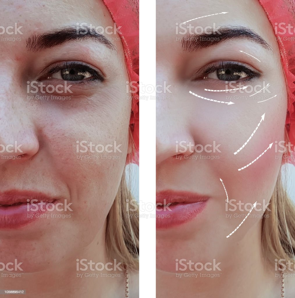 face beautiful girl face wrinkles before and after procedures, arrow