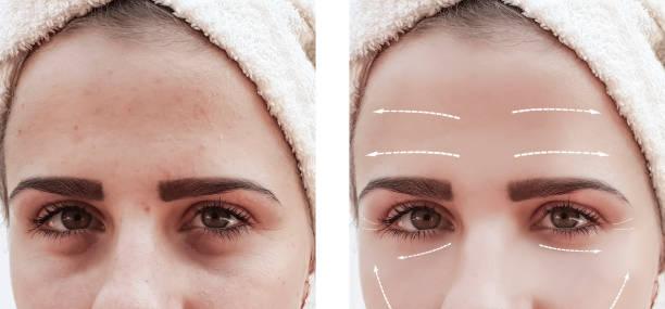 möta vacker flicka rynkor i ansiktet före och efter förfaranden - filler swollen bildbanksfoton och bilder