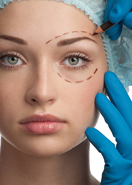face before plastic surgery operation - eyelid stock photos and pictures