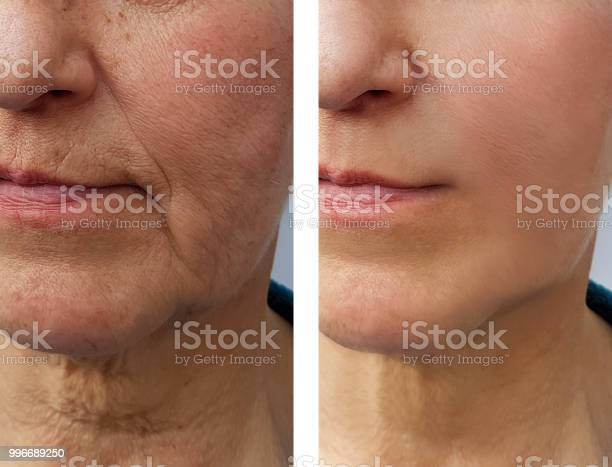 Face elderly woman wrinkles before and after picture id996689250?b=1&k=6&m=996689250&s=612x612&h=bx7 yn3b05chrx2w8j42ipbagldesn3jilxuegkc52u=