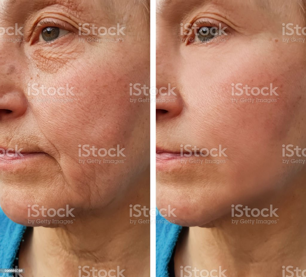 face   elderly woman wrinkles before and after stock photo