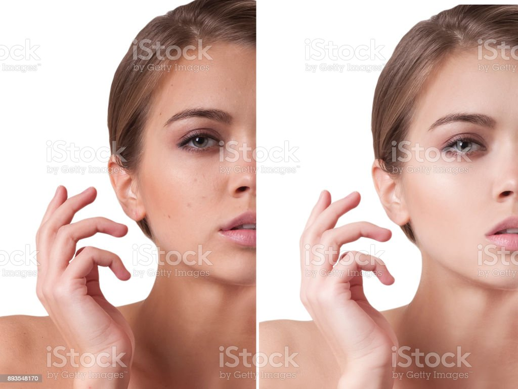 face girl before and after stock photo