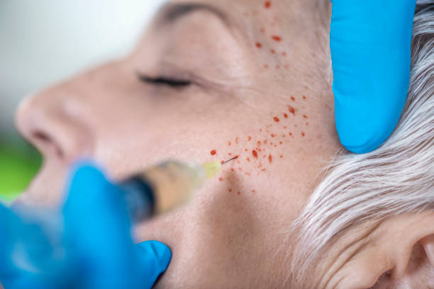 PRP Face Injecting Treatment.  Kosmetische Anti-Aging Platelet Rich Plasma-Behandlung – Foto