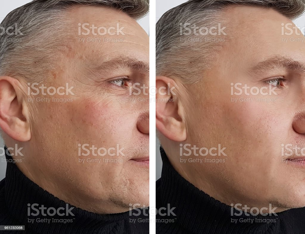 face man man wrinkles before and after stock photo