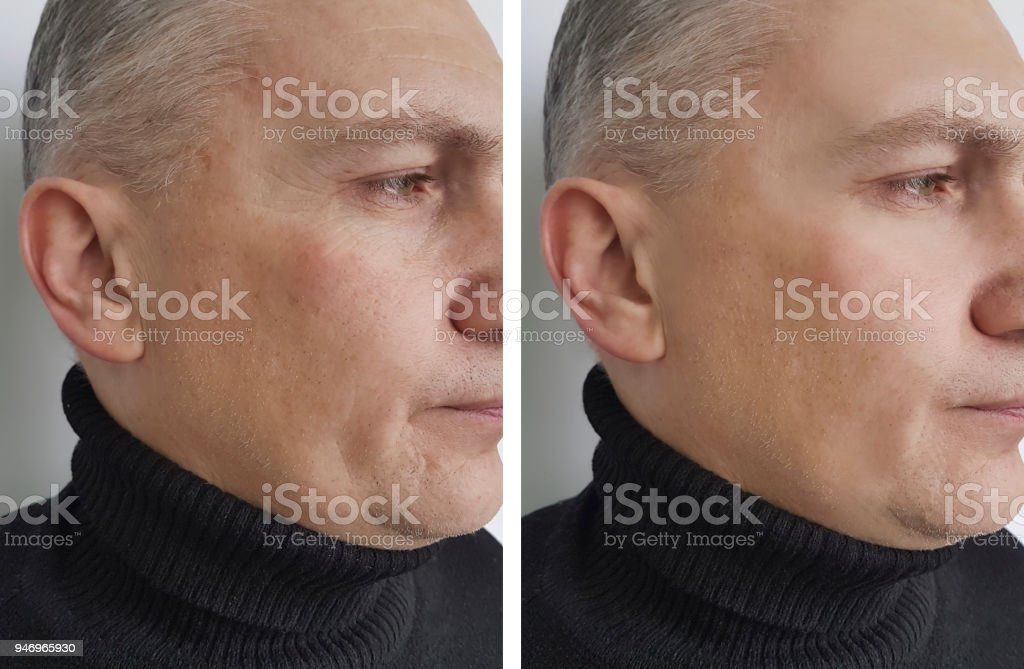 face man wrinkles before and after stock photo
