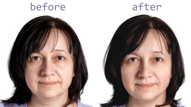 Gesicht einer reifen Frau mit dunklen Haaren vor und nach kosmetischen Verjüngungskarosserien, isoliert auf weißem Hintergrund – Foto