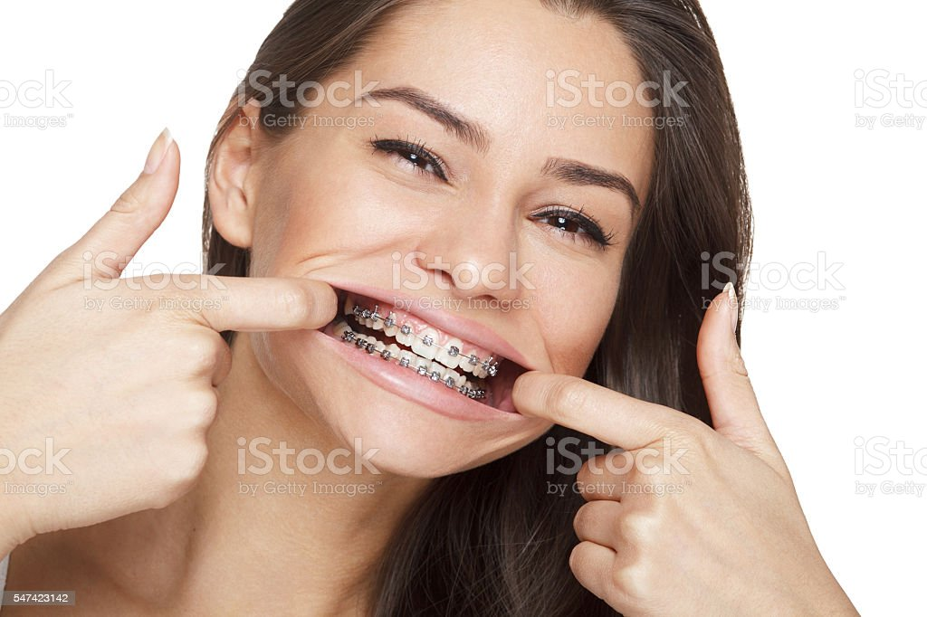 Face of a young woman with braces on her teeth stock photo