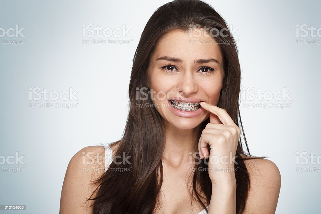 Face of a young woman with braces on her teeth Face of a young woman with braces on her teeth Adult Stock Photo