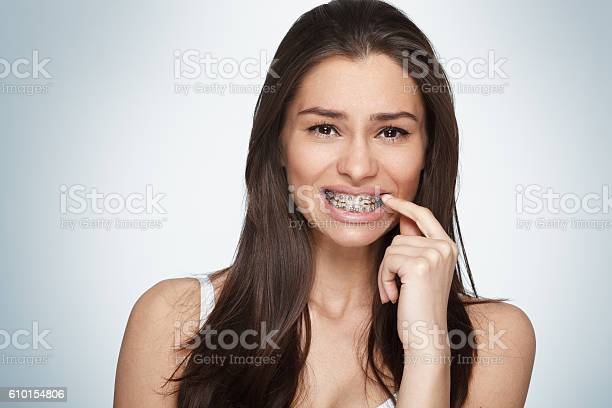 Face Of A Young Woman With Braces On Her Teeth Stock Photo - Download Image Now