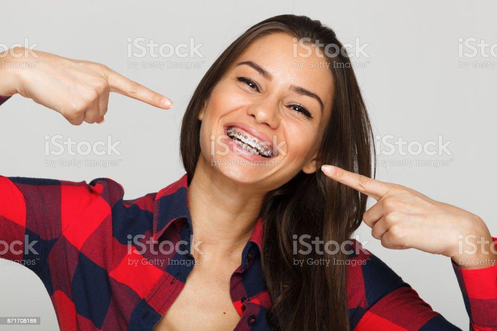 Gesicht einer jungen Frau mit Klammern an den Zähnen - Lizenzfrei Ausrüstung und Geräte Stock-Foto
