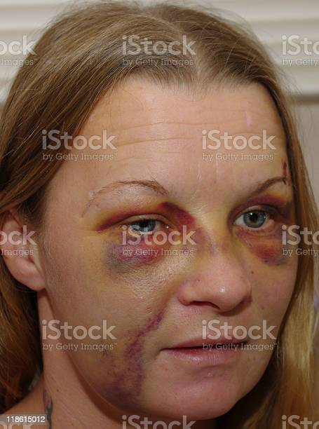 Face Of Abuse Stock Photo - Download Image Now