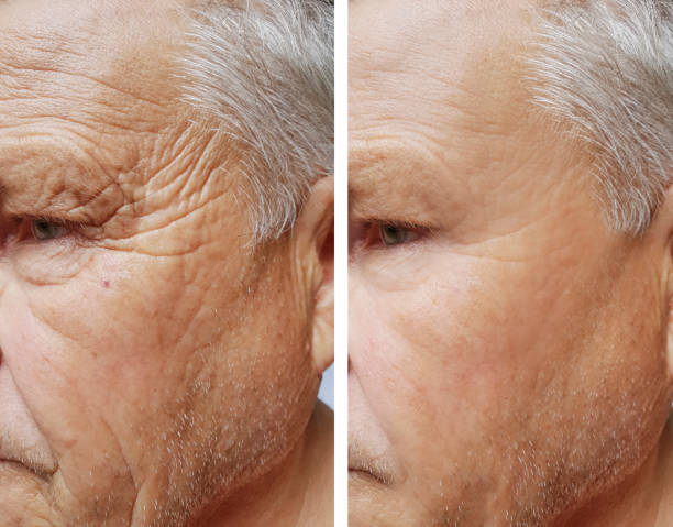 face of an elderly man wrinkles face before and after procedures face of an elderly man wrinkles face before and after procedures antiaging stock pictures, royalty-free photos & images