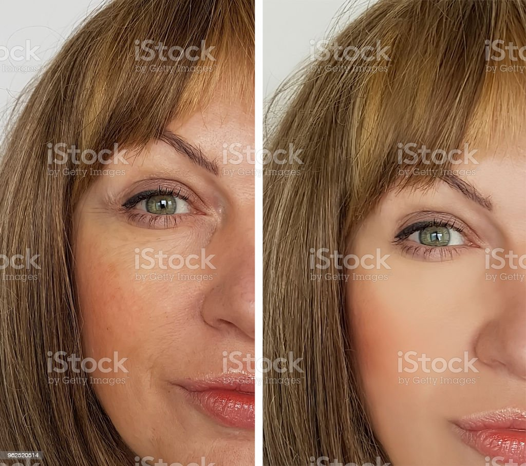 face of an elderly woman wrinkles before and after - Royalty-free Acid Stock Photo
